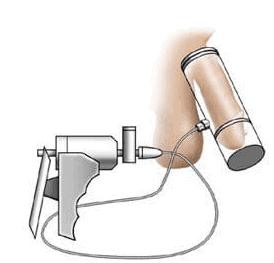 pompa a vuoto per il pene